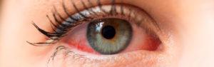 Dudas sobre ojos sensibles